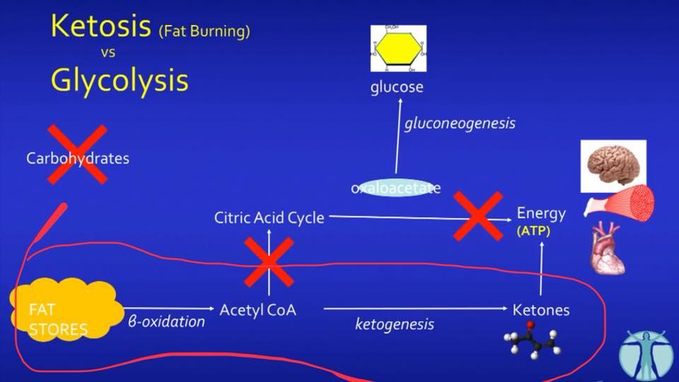 รูปที่ 5. แทนที่ปฏิกิริยา betaoxidation เพื่อสร้าง Acetyl CoA จะวิ่งเข้าสู่ Citric Acid Cycle มันเปลี่ยนทิศค่ะ(ทิศที่พี่วงกลมสีแดง) เพราะถ้าไปทิศเดิม มันจะไปตันที่ Oxaloacetate มีไม่พอ(เพราะเอาไปสร้างกลูโคสใหม่ให้เนื้อเยื่อตับ กับ เม็ดเลือดแดงใช้งาน) มันไปในทิศที่สร้างคีโตนบอดี้ 3 ตัวค่ะคือ betahydroxybutyrate(ใช้มากที่สุด) , acetoacetate และ acetone เข้าสู่ขบวนการผลิตพลังงาน ATP ให้ร่างกายต่อไป
