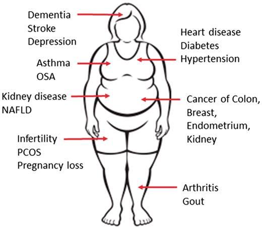 รูปที่ 2 : ความอ้วนสัมพันธ์กับโรคแทรกซ้อนมากมาย