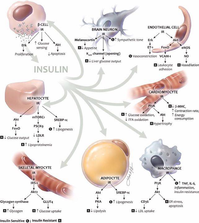 รูปที่ 2 : ผลของอินซูลินต่อเนื้อเยื่อทั่วร่างกาย เมื่อมีความไวต่ออินซูลินปรกติ (S) และ เมื่อมีภาวะดื้อต่ออินซูลิน (R)