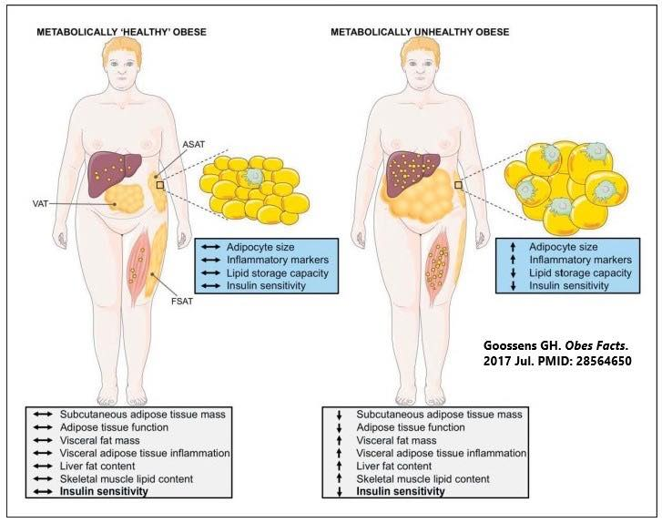 รูปที่ 1 : ความแตกต่างของคนอ้วน 2 แบบ แบบที่ 1 (ทางซ้ายมือ) เป็นคนอ้วนที่มี Personal Fat Threshold (เพดานสะสมไขมัน)สูง จะเห็นว่าค่าเมตาบอลิสมต่างๆในกรอบสีฟ้าและเทา ยังคงปรกติ จำนวนเซลล์ไขมันขยายได้มาก ปริมาณไขมันในแต่ละเซลล์ไม่เยอะเท่าคนอ้วนแบบที่ 2 แบบที่ 2 (ทางขวามือ) เป็นคนอ้วนที่มี Personal Fat Threshold ต่ำ เซลล์ไขมันเพิ่มจำนวนได้ไม่มากเท่าความอ้วนแบบที่1 จึงมีขนาดเซลล์ไขมันใหญ่กว่า และเนื่องจากมี เพดานสะสมไขมันต่ำ ไขมันที่เกินจึงหาที่สะสมใหม่เกิดเป็นการสะสมบนอวัยวะภายใน เช่น ตับ ตับอ่อน หัวใจ ปอด ค่าเมตาบอลิกต่างๆผิดปรกติหมด
