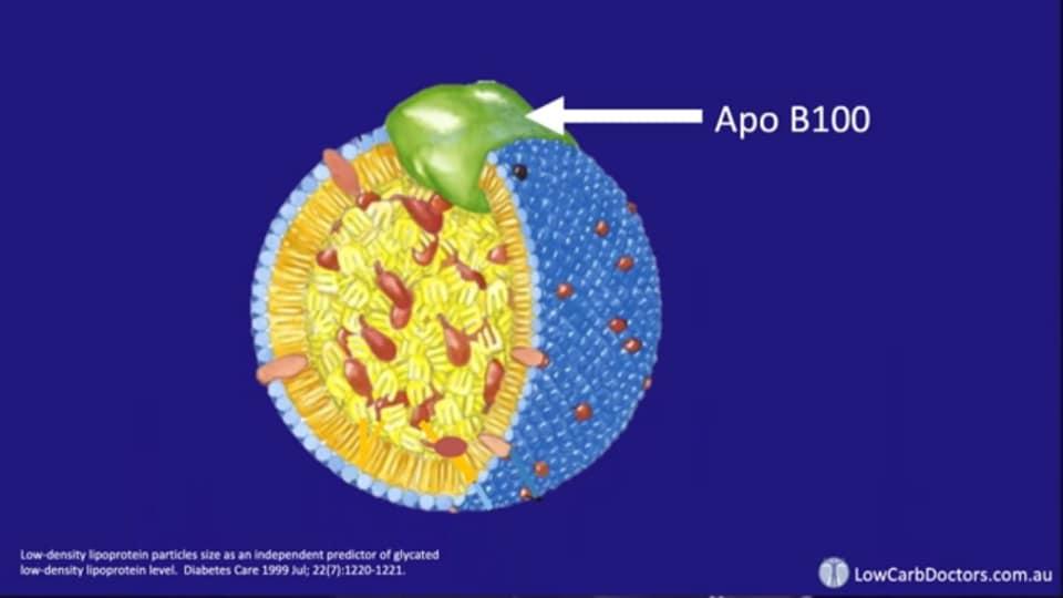 รูปที่ 6 : LDL-Particle ที่ปรกติ จะมีโปรตีนชื่อ Apo B 100 อยู่บนผิวเซลล์ LDL-Particle 1 ตัว มี Apo B 100 แค่ 1 ตัวเท่านั้น ถ้าเสียหายแล้วก็กลายร่างเป็น LDL ตัวร้ายเลย