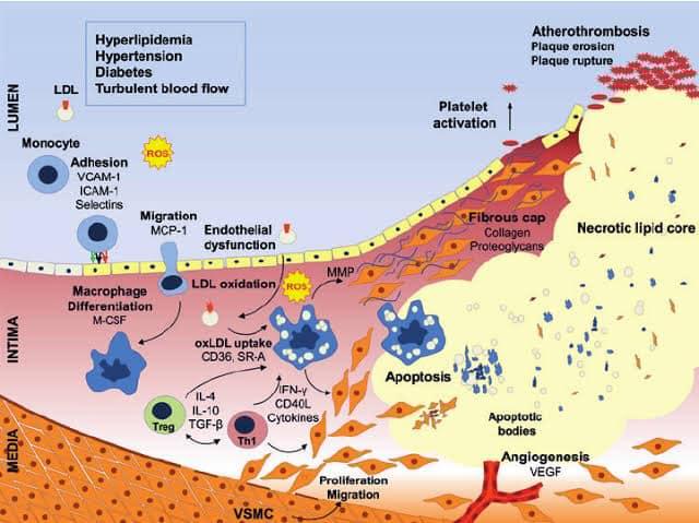 รูปที่ 5 : ขบวนการเกิดหลอดเลือดอุดตัน (Atherosclerosis)มีปฏิกิริยา Glycation ของ LDL จนทำให้ LDL ถูก oxidize ได้ง่าย เราเรียก oxidized LDL ว่า small densed LDL ซึ่งเป็นจุดเริ่มต้นของขบวนการ Atherosclerosis