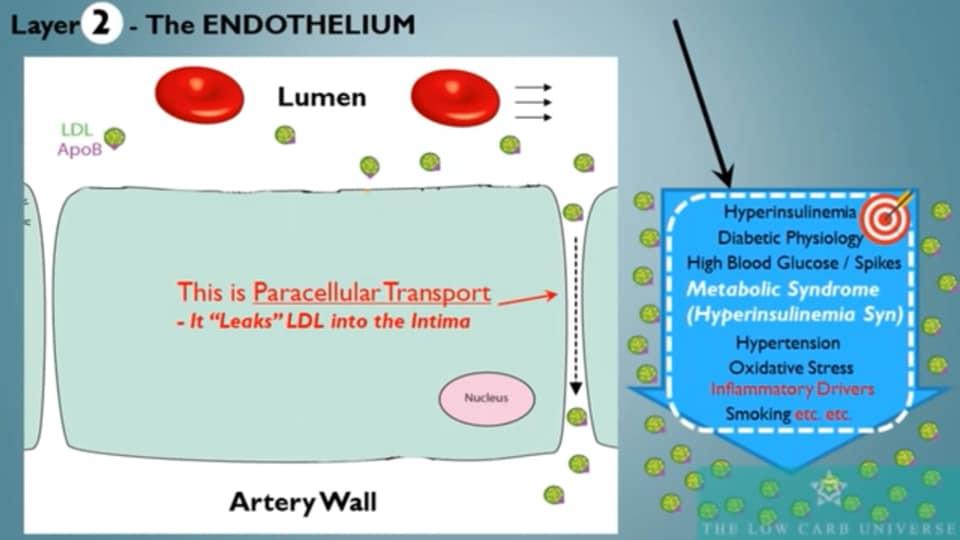 รูปที่ 3 : ชั้นที่ 2 The Endothelium Layer ขบวนการขนส่ง LDL-Particle ผ่านช่องว่างระหว่าง Endothelial Cell ด้วยขบวนการที่ชื่อ Paracellular Transport
