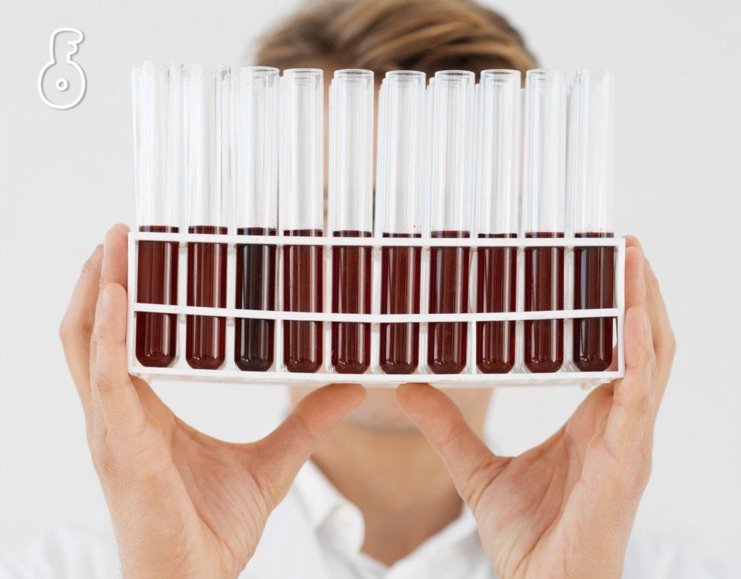 การตรวจทางเคมีในเลือด 5 ชนิด เพื่อค้นหาภาวะอักเสบในร่างกาย