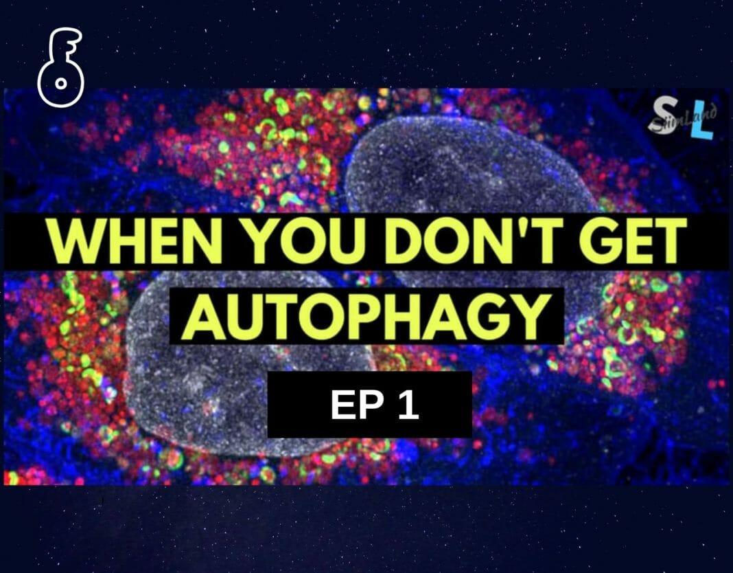 ปัจจัยสำคัญ 8 ประการที่ทำให้ขบวนการ autophagy เกิดช้าลง (ตอนที่ 1)