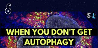 ปัจจัยสำคัญ 8 ประการที่ทำให้ขบวนการ autophagy เกิดช้าลง (ตอนที่ 2)